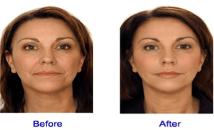 facial fullness veneers